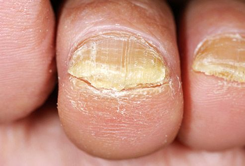 Toenail fungus is an infection that gets in through cracks in your nail or cuts in your skin, making your toenail change to a yellowish color or get thicker. It can also hurt. Left untreated, an infection could spread to other toenails, skin, or even your fingernails. #infection #fungus #toenail #thicktoenail