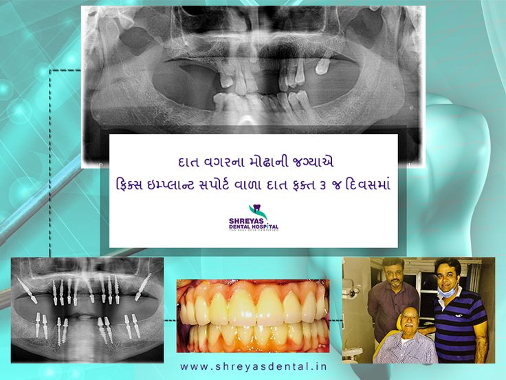 Proper Dental implant is the gateway for a better smile and a happy living! #ShreyasDentalHospital #Teethin3Days http://www.shreyasdental.in/implants-for-everybody