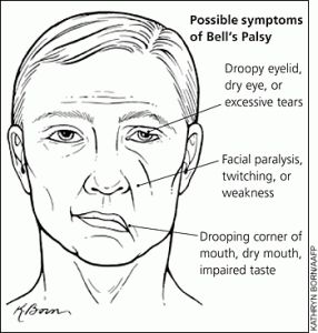 Description and Physiology The seventh cranial nerve is the facial nerve. This nerve is both a sensory and motor nerve. The facial nerve originates from the pons and innervates the motor function…