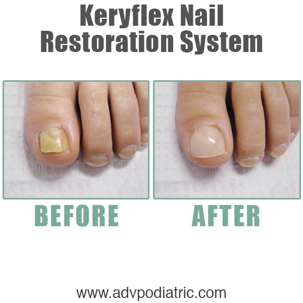 Give the gift of a better looking toenail to yourself this holiday season. Keryflex - ask us about it.