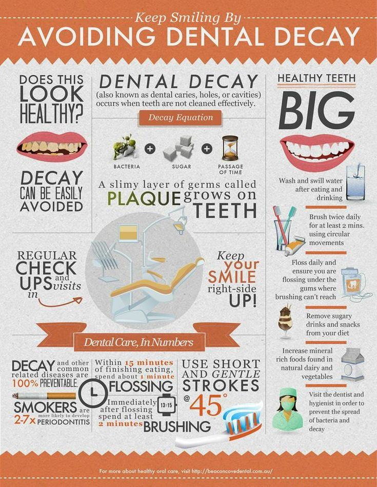 Keep smiling by avoiding dental decay#infographic