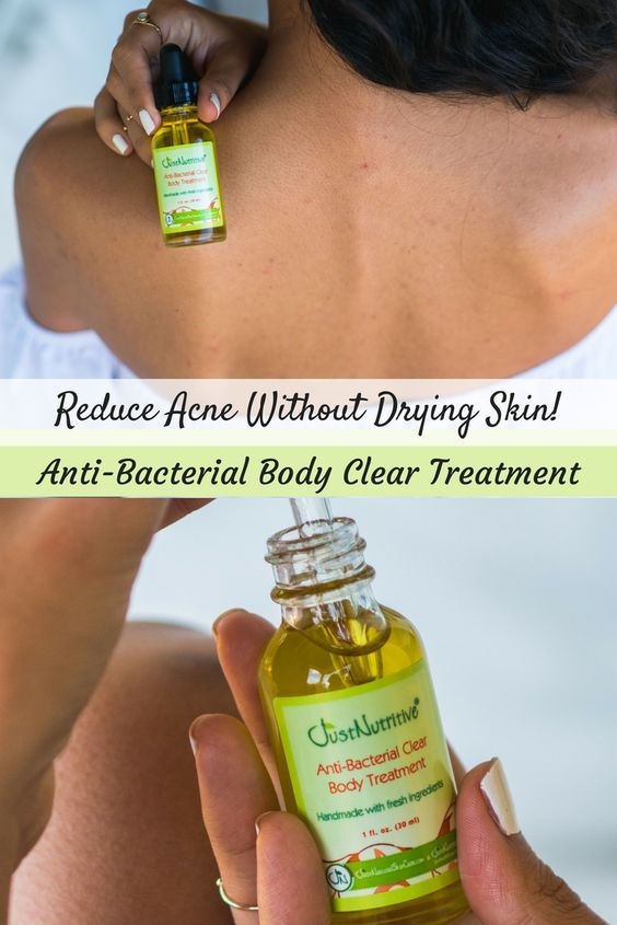 This anti-bacterial clear body serum can help reduce blemishes, pimples, and breakouts while beautifying and soothing your skin and it doesn't dry skin out like benzoyl peroxide.
