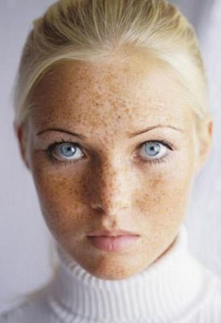 Whether she's got a light dusting or a serious sprinkle, a lady with freckles faces a unique set of beauty challenges compared to those with dot-free complexions. Description from pinterest.com. I searched for this on bing.com/images