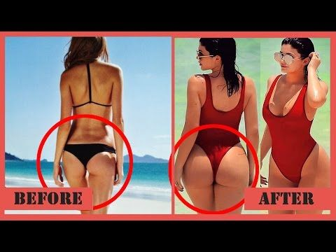 Kylie Jenner's Plastic Surgery Transformation - YouTube