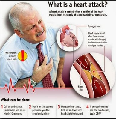 Can you have a heart attack and not notice? The most common description of the feeling of a heart attack