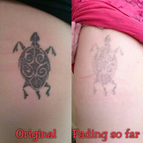 Great fade so far on this very dark tattoo on my client's side. My client has very fair skin and requires careful lasering to ensure excellent results without any damage to the skin. www.the-missing-ink.co.uk  #LovingTheFade #DoingItProperly #GetRidOfYourInk #TattooRemoval #LaserTattooRemoval #TattooRegret #TheMissingInk #Woodley #Stockport #Manchester #Cheshire #NorthWest