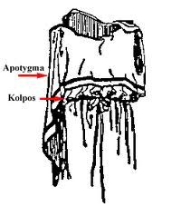 otra variedad de chiton con efecto blusa-falda , que se creaba al unir dos cinturones en la cintura y en las caderas para que la te la cayera encima de ellos. la tela sobrante podría doblarse en los hombros