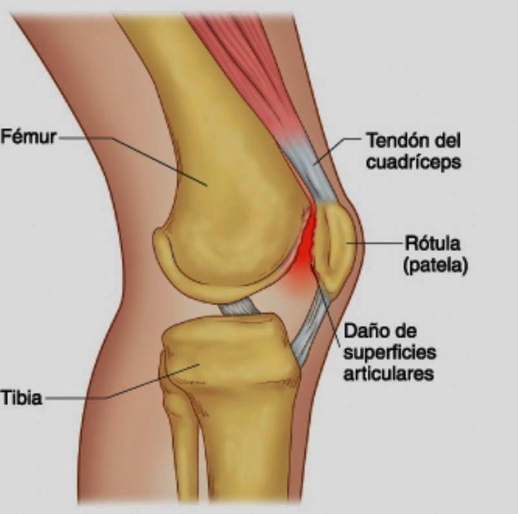 El arte de Dolor de rodilla ing