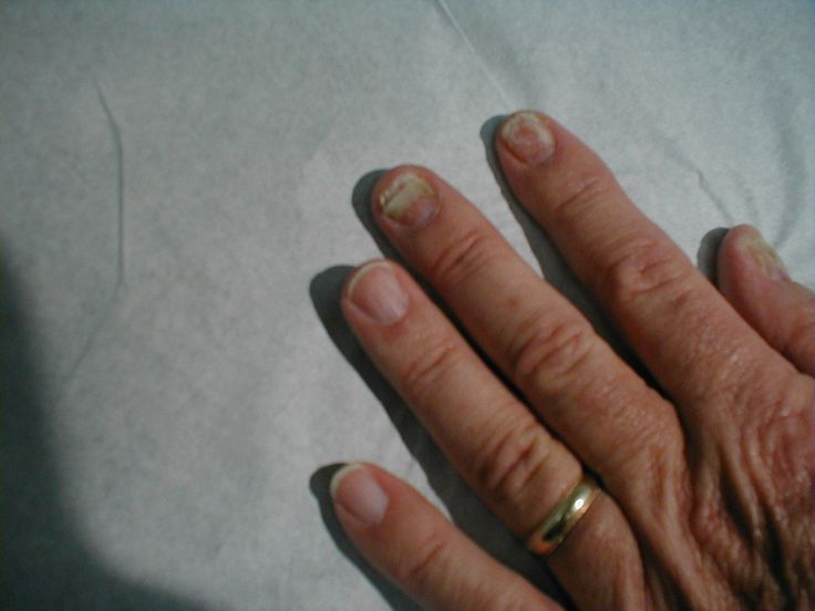 636 best Natural Nail Fungal Treatment images on Pinterest | Natural ...