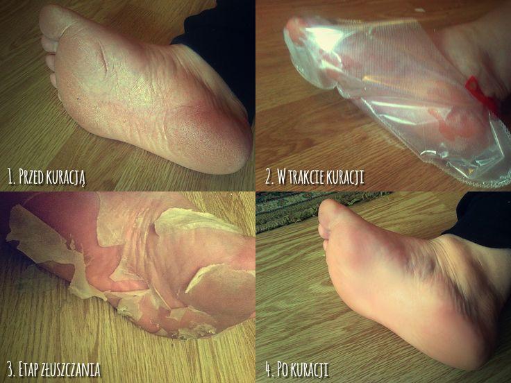 Kuracja Gold foot w 4 etapach :)