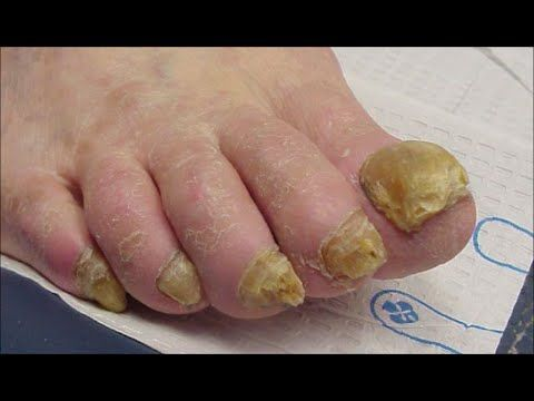 Are you looking for the best option for toenail fungus treatment? Perhaps you might have been enthusiastic to choose the best treatment to cure nail fungus.