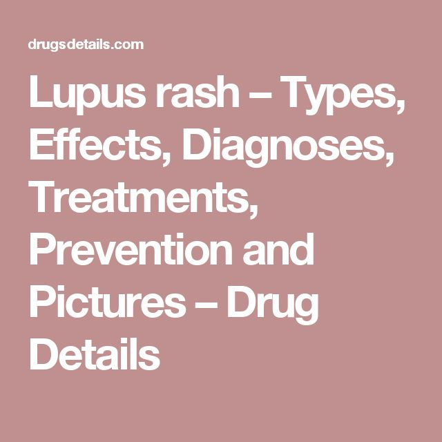 Lupus rash – Types, Effects, Diagnoses, Treatments, Prevention and Pictures – Drug Details