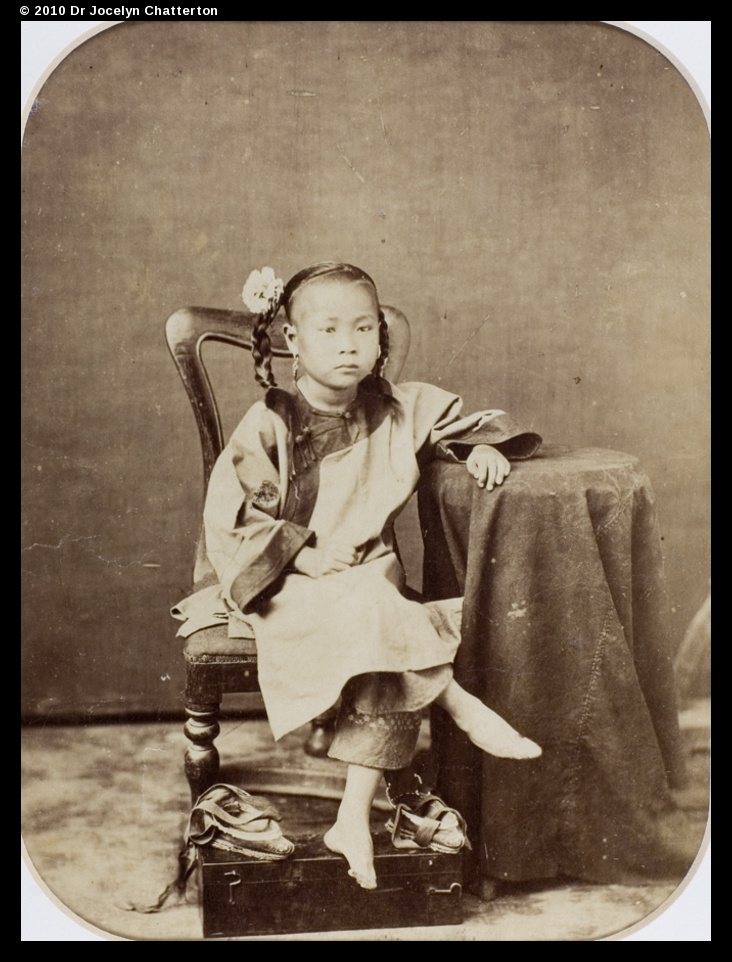 ancient chinese foot binding essay Essay on footbinding  the tradition of footbinding existed in china for centuries  position and representatives of the upper-class were willing to marry foot .