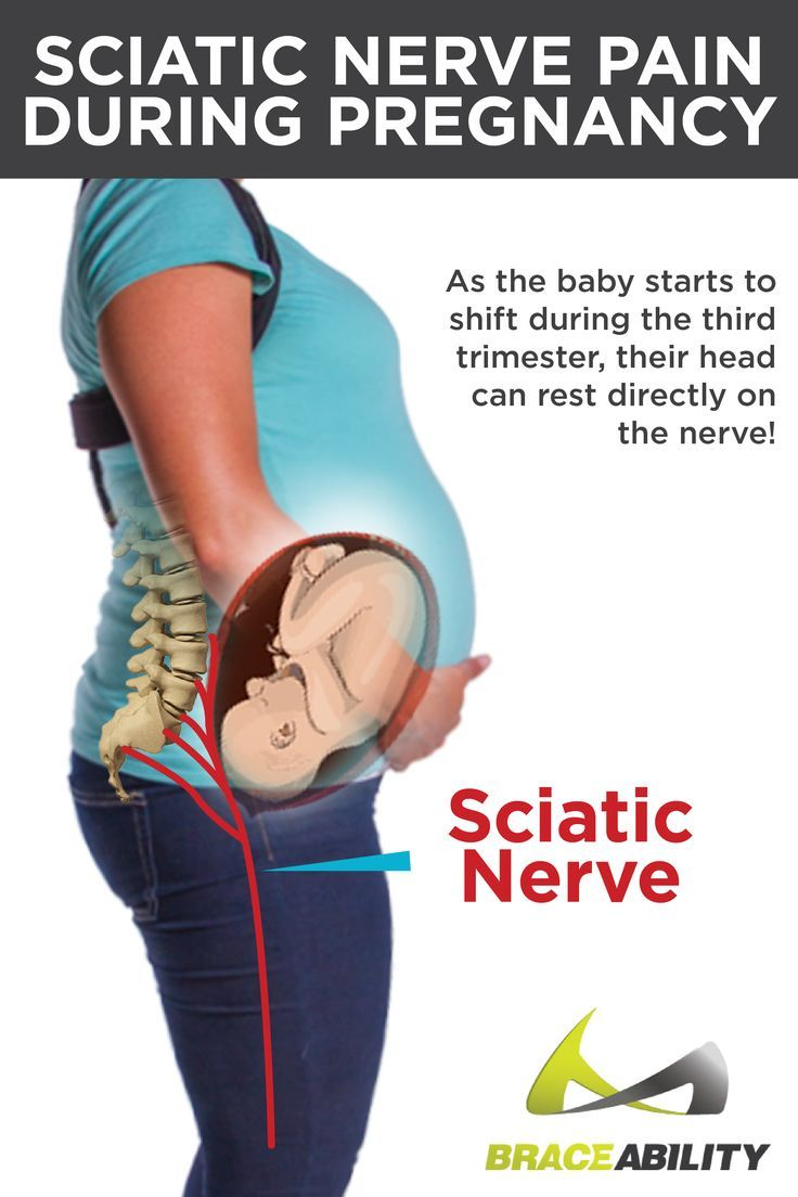 Pin On Pregnancy Back Pain Info Tips Relief
