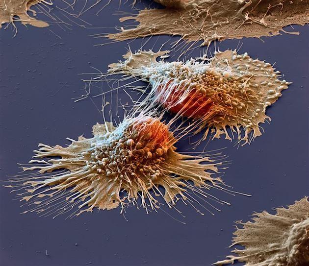 Bir elektron mikroskobu altındaki kanser hücreleri