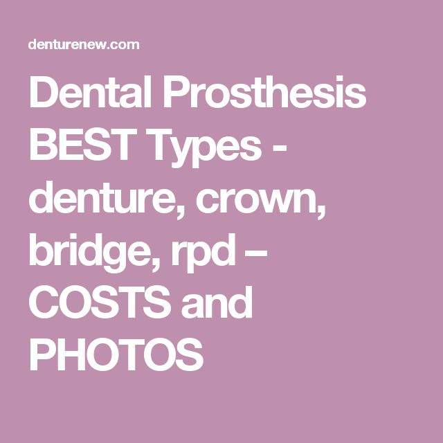 Dental Prosthesis BEST Types - denture, crown, bridge, rpd – COSTS and PHOTOS
