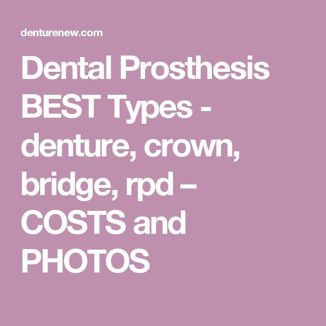 Dental Prosthesis BEST Types - denture, crown, bridge, rpd – COSTS and PHOTOS