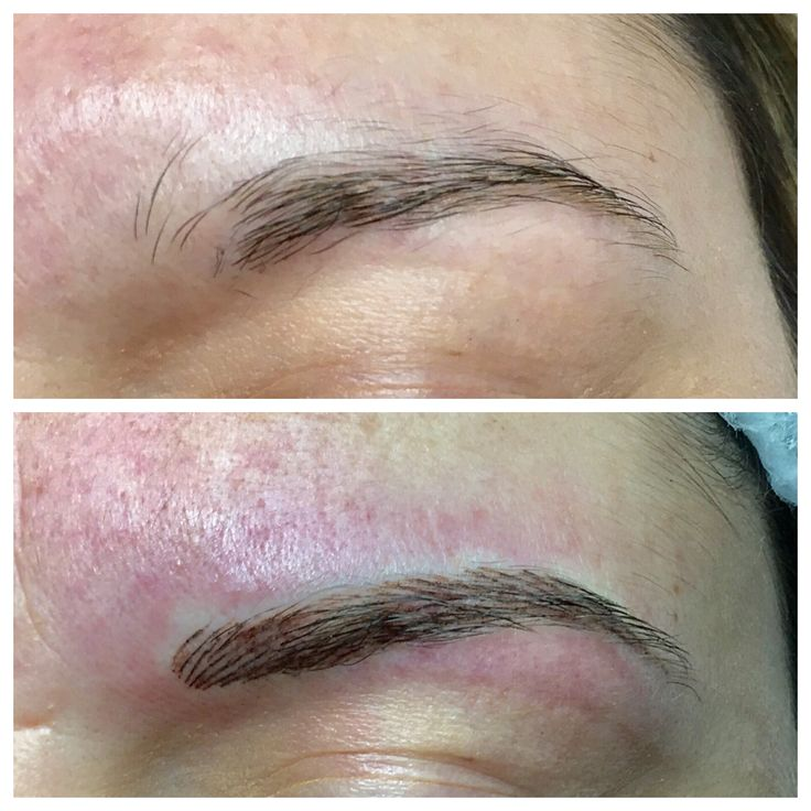 Even with a little redness what a difference! These brows have been brought in a bit more creating bulbs which then has created a lot more shape to her brow 💕