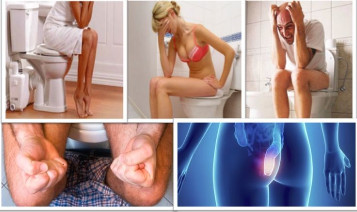 Natural Herbal Remedies for Rectal Prolapse Skin | Herbal Care Products