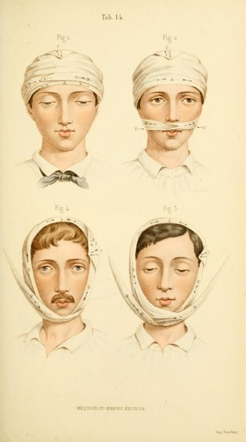 [Manual of surgical bandages, devices and dress... Wrapping the head
