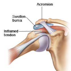 Learn more about shoulder tendinitis and bursitis. Cleveland Clinic provides information on causes and treatment options for shoulder tendinitis.