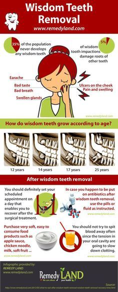 Wisdom teeth #wisdom #teeth #remedies ==========================  Warning to all scrapers, do not change source and do not try to modify infographics