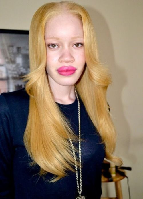 Diandra Forrest - first black albino super model | Red ...