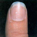 Nail diseases & disorders