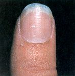 Koilonychia is usually caused through iron deficiency anemia. these nails show raised ridges and are thin and concave. Seek a physicians advice and treatment.