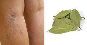 Thumb Cure varizes, alivie cansaço nas pernas e estimule circulação com este tratamento caseiro com louro