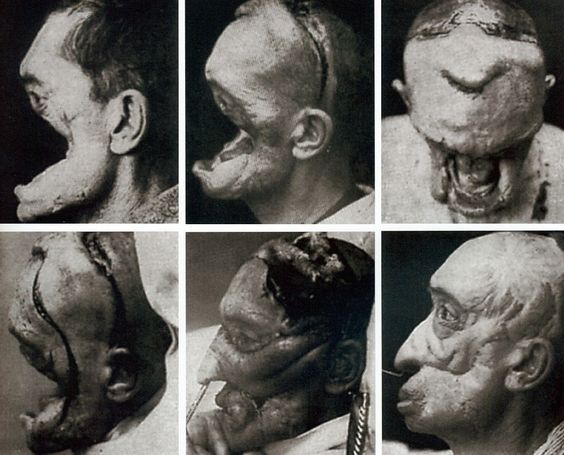 Facial Reconstruction from WW1: