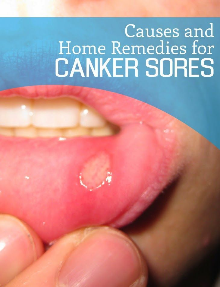 Home Remedies For Canker Sore 28 Images 9