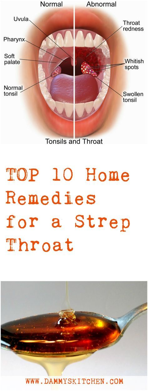Strep Throat: 10 Natural Remedies #health #remedies #nature #healthylife