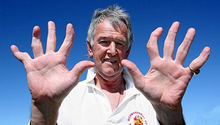 No es de mala. pero esto me hace sentir bien xD     Wicket keeper with 10 broken fingers // David Morrison is anything but a safe pair of hands. In 45 years of wicket keeping, the amateur league cricketer has broken every finger and both his thumbs. Reluctant to seek medical attention for fear of losing his place in the team, he would simply apply a bag of frozen peas and carry on playing.