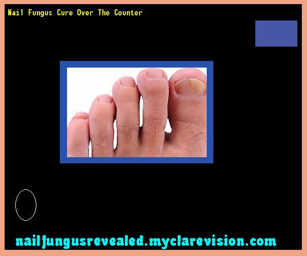 Nail fungus cure over the counter - Nail Fungus Remedy. You have nothing to lose! Visit Site Now