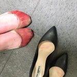 BLOG - Com  Jornalismo Levado a Sério. - BISPO MAGALHÃES: CURIOSIDADE - Garçonete mostra pés sangrando por u...