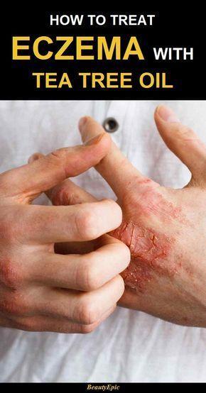 how to treat eczema with tea tree oil