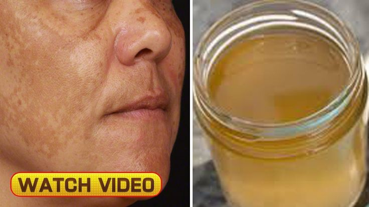 Remove Brown Spots On Face With This Simple Ingredient