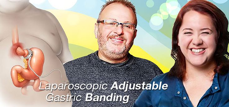 The Lap-Band is a laparoscopic gastric band surger…