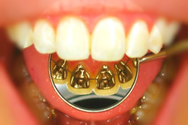 Read this #article and Know All about #Lingual #Braces.