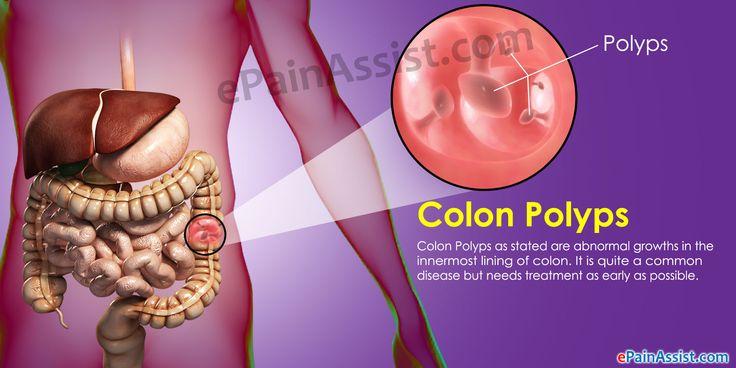 Colon Polyps Read: http://www.epainassist.com/abdominal-pain/intestine/colon-polyps