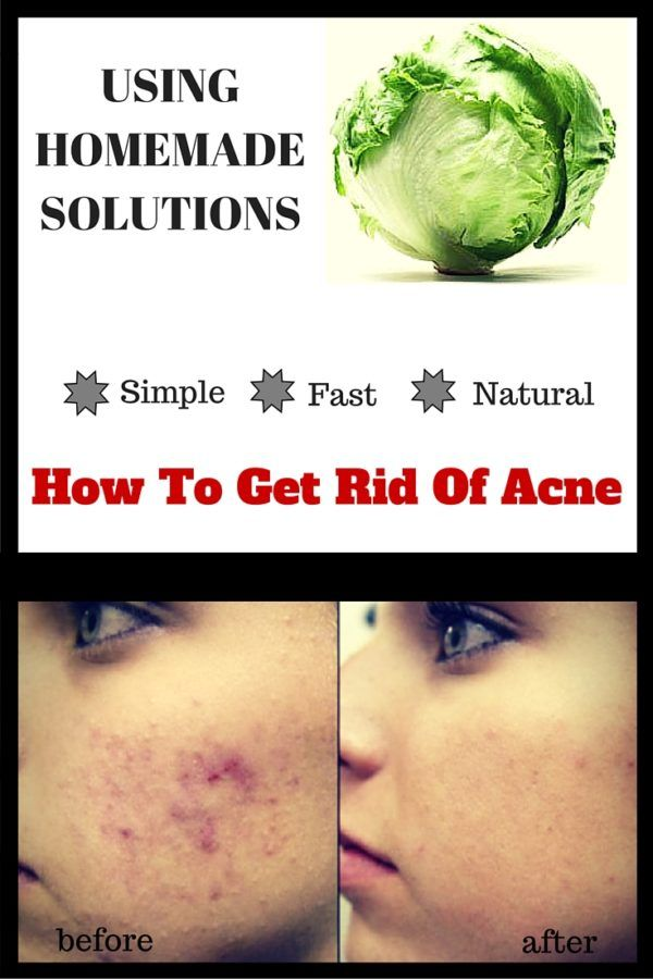 How to Get Rid of Acne using Homemade Solutions