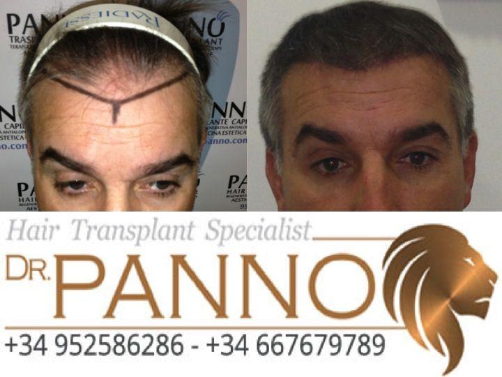 tecnica fue de trasplante capilar cadiz una frente completamente nueva pudiendo llevar el pelo muy corto gracias a la alta densidad dr panno cadiz