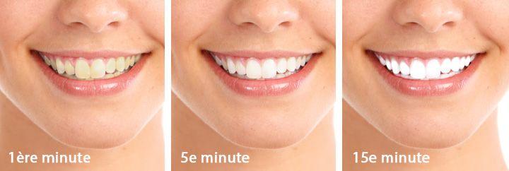 Article | LumiGlow Teeth Whitening