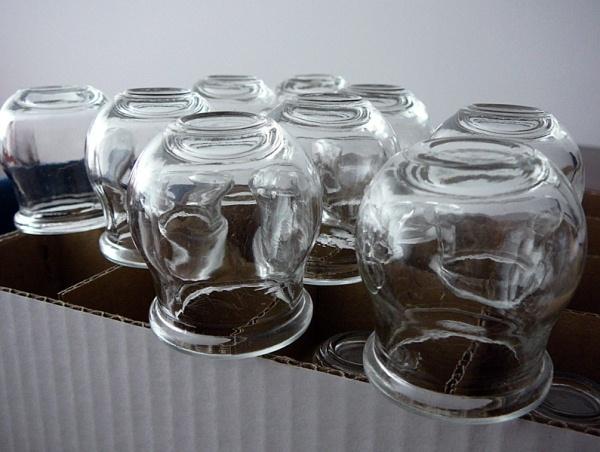 Stawianie baniek metodą na przeziębienie.