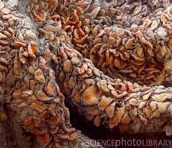 ✯ Intestinal villi. Coloured scanning micrograph (SEM) of villi from the lining of the jejunum (part of the small intestine).✯