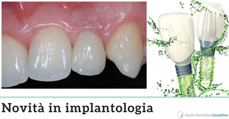 L'implantologia è quella branca dell'odontoiatria che si occupa di sostituire i denti mancanti con radici in titanio ancorate nell'osso che possono sostenere denti singoli, gruppi di denti o possono anche fungere da supporto per una protesi completa.