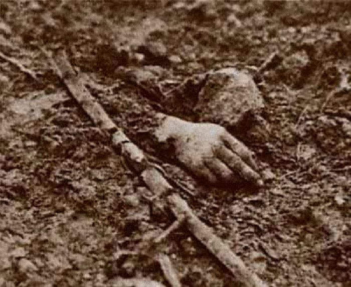 Verdun, 1916  Photo of a soldier's hand left on the battlefield after the battle of Verdun in WWI. It is a horrific photo, not because of any gore and violence being seen. The hand is what is left from the violence that has occurred and leaves, in the viewers mind, the images of all the violence that must occurred before this image was captured.
