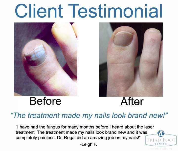 Laser toenail fungus treatment works just ask our patients! #NailFungusYoungLiv