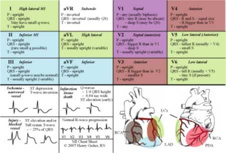 All About EKG: often given to patients to qualify them for Chiari Decompression surgery.